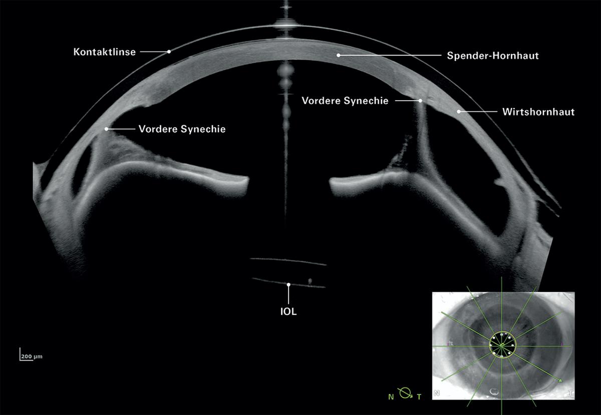 Imaging App: Keratoplastik, vordere Synechie, pseudophakes Auge mit Kontaktlinse. Bildnachweis: Dr. Tobias Duncker, Halle Mit Klick auf das Bild können Sie die Ansicht vergrößern.