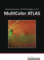 SPECTRALIS eBook MultiColor Atlas Sonoda