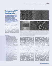 Article in The Ophthalmologist on SPECTRALIS OCT Angiography