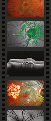 The OCT LIVE format involves imaging patients live at the event.