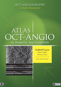 Atlas OCT Angiography in Diabetic Maculopathy
