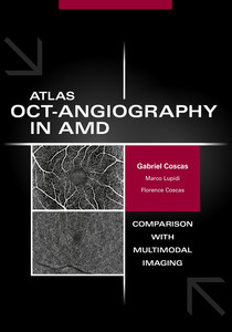 Atlas OCT Angiography in AMD
