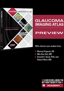 Glaucoma Imaging Atlas Preview Book