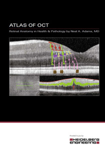 Atlas of OCT