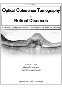 Optical Coherence Tomography in Retinal Diseases