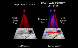 TruTrack Active Eye Tracking