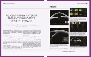 Revolutionary Anterior Segment Diagnostics: It's in the Image