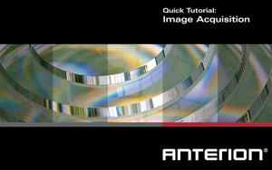 ANTERION Quick Tutorial