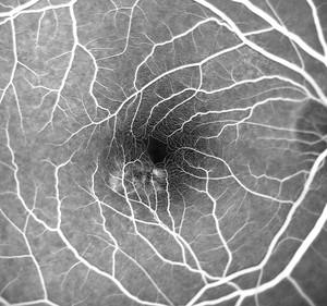 Retinal circulation