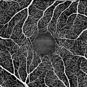 SPECTRALIS OCT-Angiografie Aufnahme