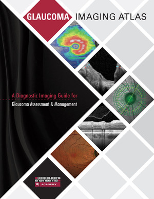 Glaucoma Imaging Atlas