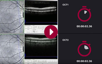 SPECTRALIS OCT1 vs. OCT2: Retina – Dense Posterior Pole Scan
