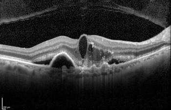 Altersbedingte Makuladegeneration: Spurensuche mit der optischen Kohärenztomografie