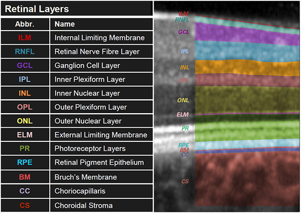 Know your retinal layers | Heidelberg Engineering GmbH