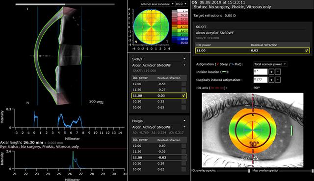 Cataract App - OCT-Schnittbild, Achsenlängenmessung, Hornhautkarten sowie sphärischer und torischer IOL-Kalkulator eines Auges mit Astigmatismus.