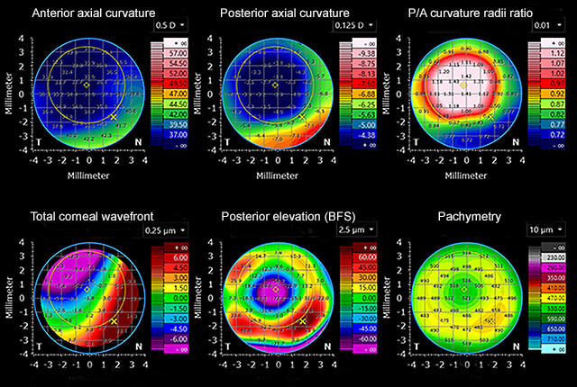 Figure 2: Corneal maps detailing the anterior and posterior corneal surfaces of eyes after refractive surgery.