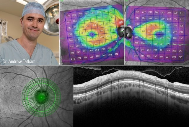 OCT in the Diagnosis and Management of Glaucoma