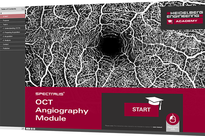 Interactive Video Tutorial for SPECTRALIS OCT Angiography Module