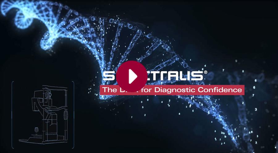 Die Kern DNA des SPECTRALIS