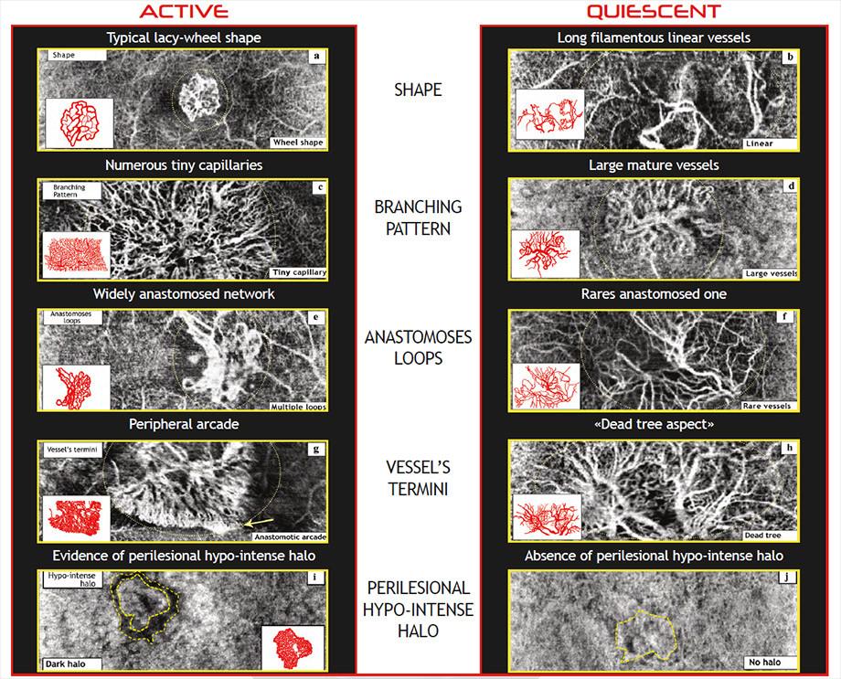 Prof. Coscas' criteria to identify an active CNV lesion